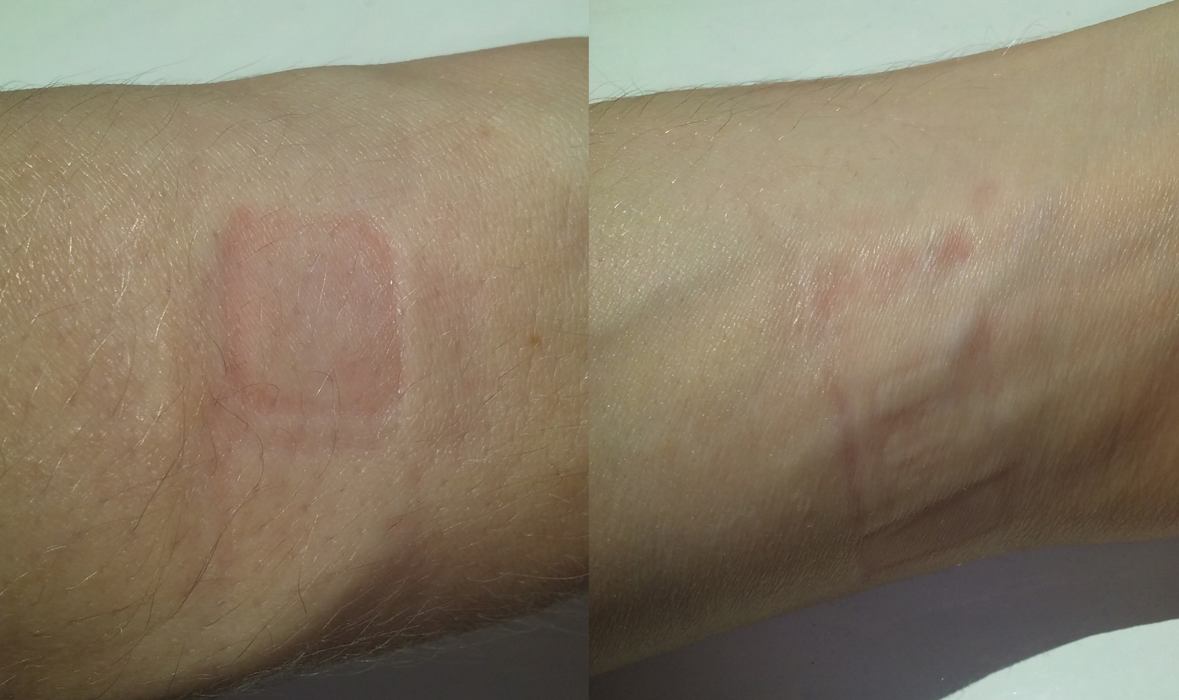 The imprint on my skin after a few hours of wearing Vivosmart HR